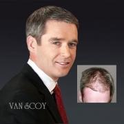 best surgical hair transplants columbus cleveland ashland ohio