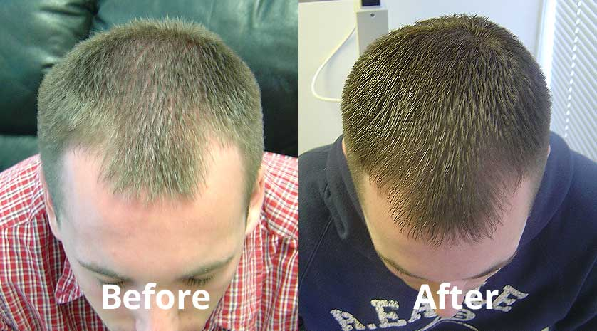 laser hair therapy results