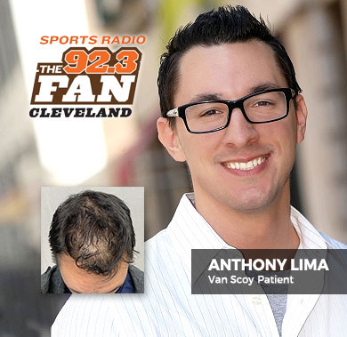 Anthony Lima PRP Hair Loss Treatment Cleveland Ohio