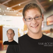cyberhair mens hair replacement ohio