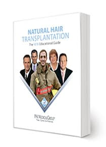 Guide to hair Transplants
