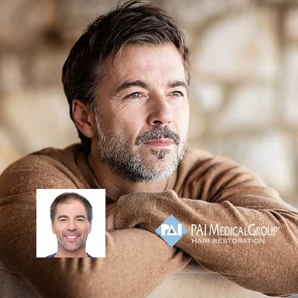 hair transplant clinic ohio