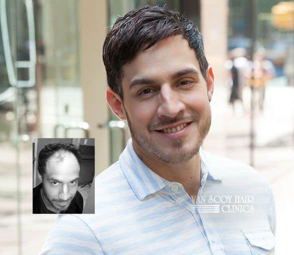Mens non-surgical hair replacement restoration ohio
