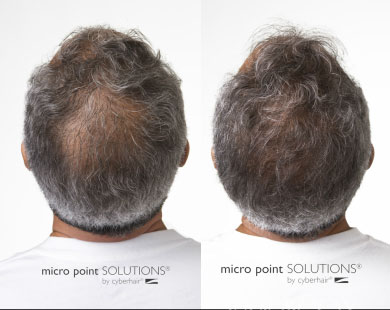 micro point hair additions for men ohio