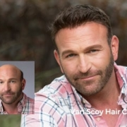 non-surgical mens hair replacement ashland ohio