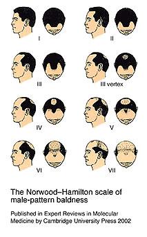 norwood baldness progression in men