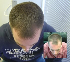ohio laser hair loss treatment therapy