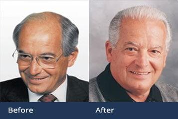 Best Hair Transplant Doctor Cleveland Ohio