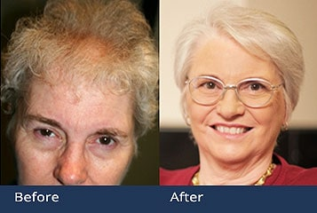 Best Hair Transplant Clinic Columbus Ohio