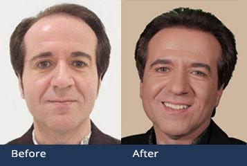 Hair Transplant Clinic Columbus Ashland Ohio