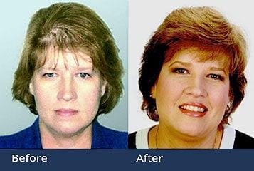 Female Hair Transplants Ohio