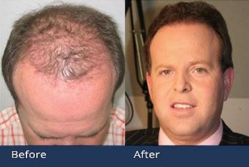 PAI Hair Transplant Restoration Cleveland Ohio