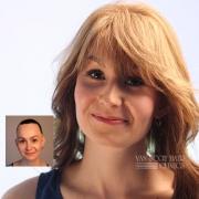 alopecia wigs columbus cleveland ashland ohio